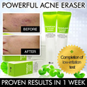 ❤BE ACNE FREE!!❤SEE RESULTS* IN 1 WEEK❤NON-DRYING❤POWERFUL ACNE CREAM❤TREAT ACNE❤FADE ACNE SCARS❤REMOVE INFECTION AND BACTERIAL❤FAST AND EFFECTIVE❤NATURAL INGREDIENTS❤FDA APPROVED❤