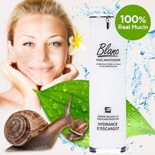 [Blanc] / Blanc Acne Scar Cream / Snail Mucus Cream / No. 1 in Removing Acne Scar / Relieve irritation caused by acne / Remove acne scar / Relieve redness