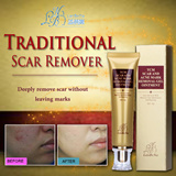 Traditional Scar remover LANBENA ginseng essence acne scar removal cream face care Acne Spots skin care treatment whitening cream stretch marks 30ml
