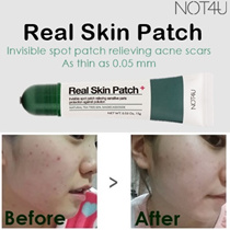 ♥ REAL SKIN PATCH ♥ OVER 5000 SOLD IN 1HR! ♥ ORGANIC ACNE SCAR HEALER ♥ INVISIBLE PIMPLE PATCH ♥