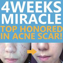 [Blanc] / Blanc Acne Scar Cream / Snail Mucus Cream / No. 1 in Removing Acne Scar