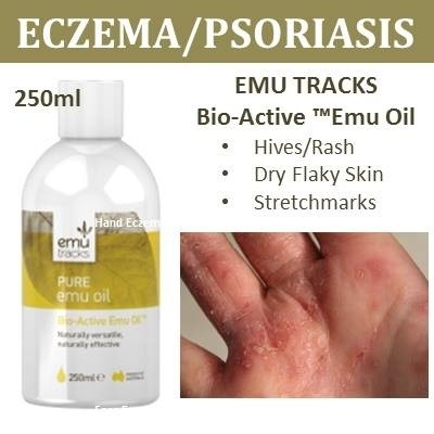 how to make psoriasis go away fast
