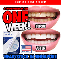 [USE COUPON HERE] Sold over 1000+ pens! | Rated ★★★★★ 5 STARS Item | Voted as the MOST VALUED WHITENING PEN |  [MADE IN USA] DAZZLING WHITE  | Instant Whitening Pen | 4 Shades Whiter in 1 Week