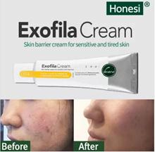 ❤BUY 2nd CHEAPER❤Honesi Exofila Cream 50ml/ HONESI Acne scar care/ freckles removal cream❤