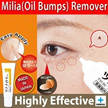 Tsubu Night Pack Milia(oil bumps)/wart remover. 100% Authentic. Made in Japan. Stock in Singapore