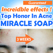 [Blanc] Special Price Event■Top honor in Acne treatment ■ Miracle soap ■ Incredible change ■ Orgarnic soap ■ acne wash