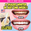 100% AUTHENTIC DAZZLING WHITENING PEN | SOLD OVER 2000+ PENS | [MADE IN THE USA]