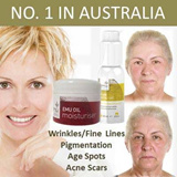 Anti-Aging EMU OIL MOISTURISER. Fast/Effective/Natural. Wrinkles/Fine Lines Pigmentation Age Spots Acne Scars. Fast Shipping!