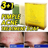 [3Buy1Free]Acne treatment 100% Safety Organic Soap/Whitening/cleansing/Skin care/FREE shipping