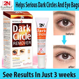 2n eye cream/helps dark cirlces/eye bags/highly raved in tv variety shows