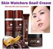 KOREA Skin Watchers Whitening + Anti-aging Snail Cream (Effective for healing Acne Scars/ Anti-aging/ Skin Rejuvenation