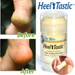Heel-Tastic foot care foot cream heel