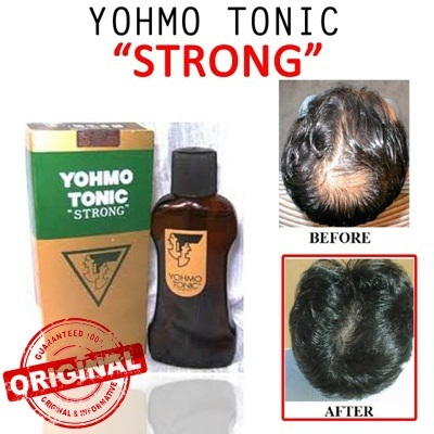 [150ml/200ml]ORIGINAL Yohmo Hair Tonic made in japan