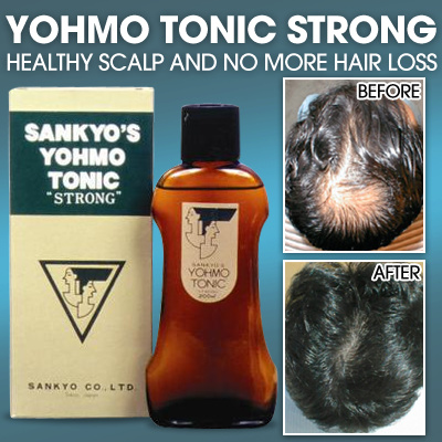YOHMO TONIC STRONG Made in Japan*Healthy Scalp and no more hair loss*