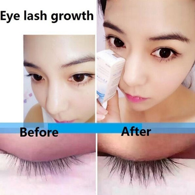 679203bc287 Qoo10 - Miraclash Brand Powerful Eyelash Growth Treatments Liquid Serum  Enhanc... : Skin Care