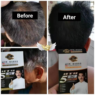 WouWou SoonHey DIY Black Hair Dye - Black cover White hair Wou Wou / WoWo