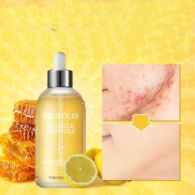 Image result for tosowoong propolis sparkle ampoule