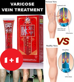 [1+1 FREE] Varicose Veins Cream removal varicose veins treatment Anti Foot Leg Vasculitis