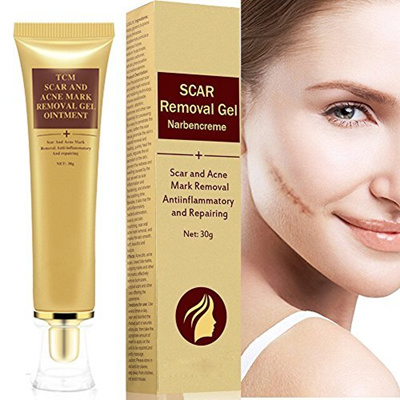 Qoo10 Zdu Acne Scar Removal Cream Skin Repair Face Cream Acne