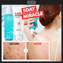 ★POWERFUL ACNE SOLUTION★ACENE CLEAR TONER_FORM CLEANSER_SERUM