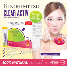 Kinohimitsu Clear Activ30s (1MTH SUPPLY) *Clear Acne*Control Oil Balance* Proven Effective Reviews