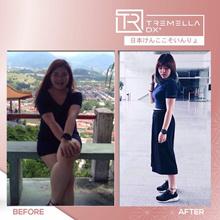 (BUY 4 FREE 10 Sachets) TREMELLA DX+ PREMIUM NEW Rose Gold Packaging !! ★ 日本酵素排毒 ★ 高級版 -- Upgraded