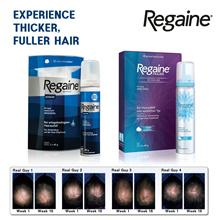 Regaine Schaum Hair loss treatment