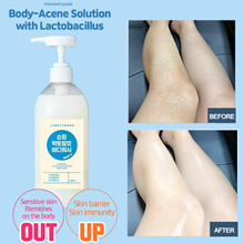 ACNE CLEAR [LABEL YOUNG] ATOMY SHOCKING LACTOBACILLUS BODY CLEANSER