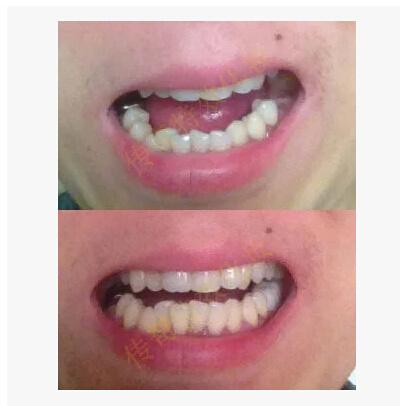 Qoo10 - Temporary denture modification
