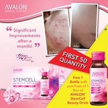 FREE STEMCELL! 女人我最大 RECOMMENDS - QOO10 No.1 BESTSELLING AVALON STEMCELL DRINK