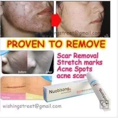 Qoo10 Nuobisong Face Care Acne Scar Removal Cream Acne Spots