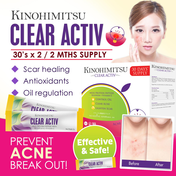 [2MTH SUPPLY] Clear Activ 30sx2 Deals for only S$119.8 instead of S$119.8