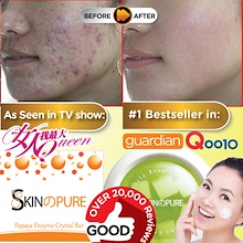 OVER 23000 GOOD REVIEWS:miraculous Result Perfect Skin- SKINPURE Enzyme Crystal Soap Skin pure