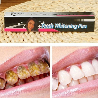 Cost-effective White Tooth Cleaning Bleaching Dental Professional Kit Teeth  Whitening Gel Pen SC