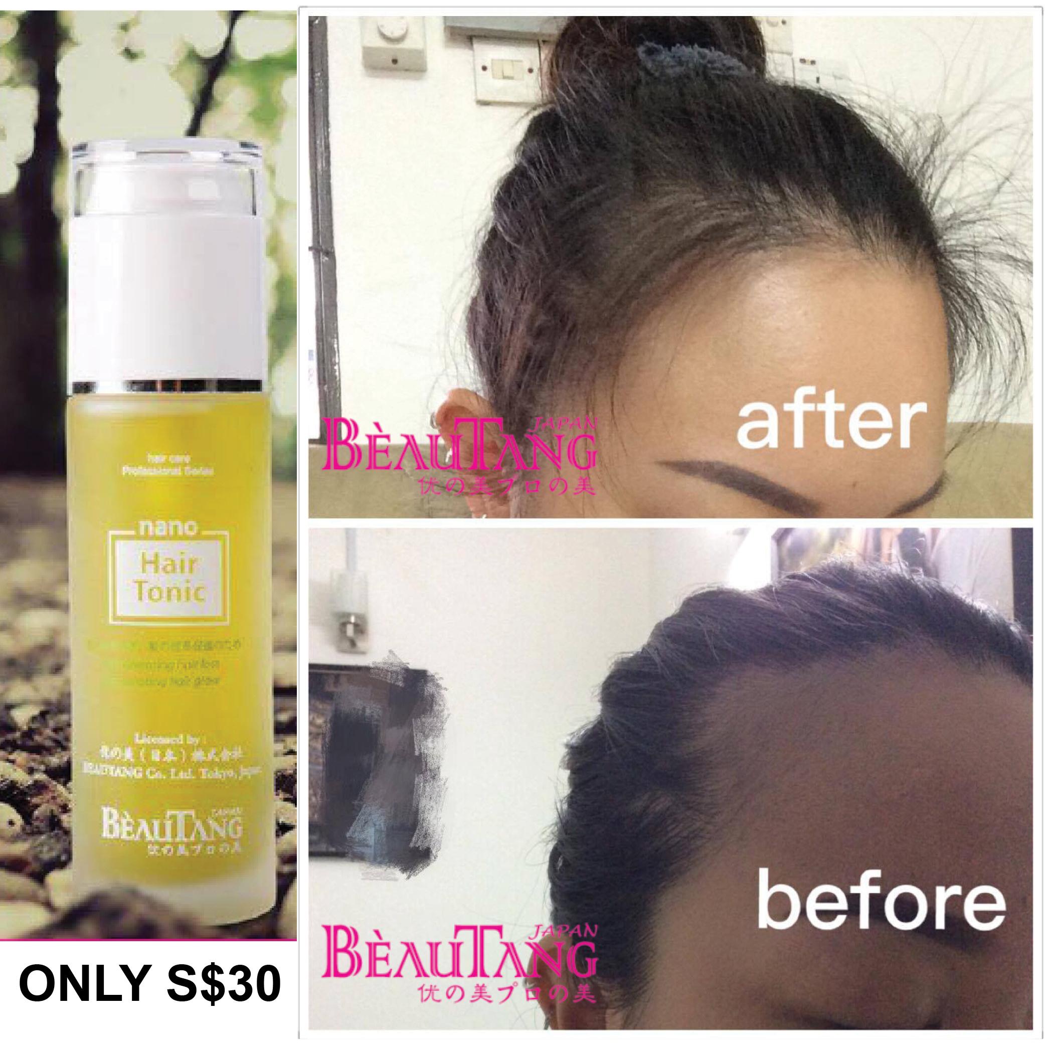 why using hair loss japan