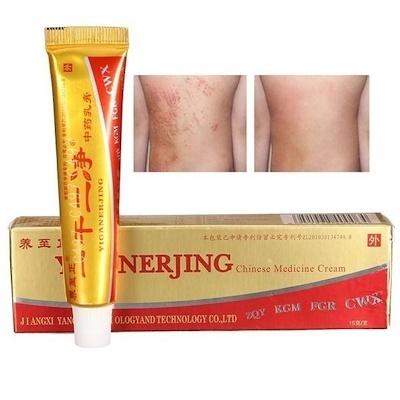 Natural Chinese Herbal Medicine Cream Eczema Dermatitis Psoriasis Vitiligo  Skin Disease Treatment