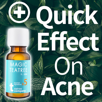 Acne Treatment Search Results Q Ranking Items Now On Sale At