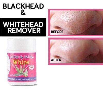 Thailand /Vietnam White Mask Blackhead and Whitehead Remover!! PStrawberry  Nose!! Blackhead remover mask black head