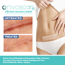 【100% Effective】 Silicone Scar Removal Patch Solution for any scar [Suitable for Face and Body]