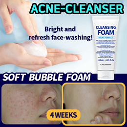 🔥Limited Qty Sale 1+1+1🔥 ACNE CLEANSER [W.SKIN LAB] MILKY PERFECT FACIAL CLEANSER / CLEANSING FOAM