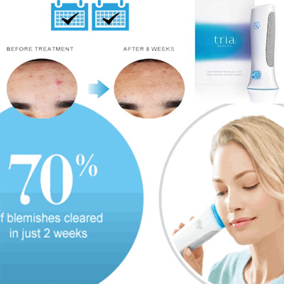 Tria Acne Clearing Blue Light Skin Perfectiing Treatment Blemishes Therapy